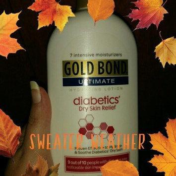 Gold Bond Ultimate Diabetics' Dry Skin Relief Hydrating Lotion, 18 oz uploaded by Dana M.
