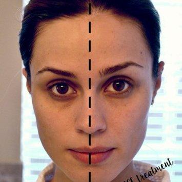 NuFace Mini Facial Toning Device, 1 ea uploaded by Ana G.