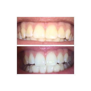 Photo of Crest 3D White Whitestrips 1-hour Express Teeth Whitening Kit uploaded by Lola C.