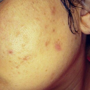 Photo of Paula's Choice Skin Balancing Super Antioxidant Concentrate Serum with Retinol uploaded by Tamara F.