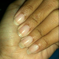 Dr MarVey Nail Cure uploaded by Tay S.