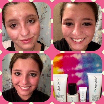 Photo of Mary Kay Clear Proof Acne Treatment Gel uploaded by Stephanie L.