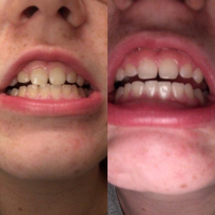 Whitestrips Dental Whtng Sys Crest 3D White Whitestrips Classic Vivid - Teeth Whitening Kit 15 Treatments uploaded by Karley B.