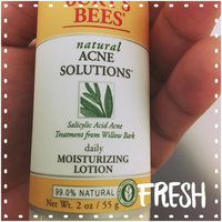 Burt's Bees Acne Daily Moisturizing Lotion uploaded by Wendy A.