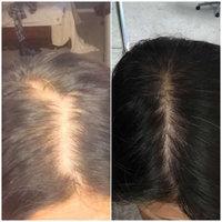 Women's Rogaine Hair Regrowth Treatment Foam, 4 Month Supply, 1 ea uploaded by Jennifer M.