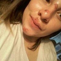 Neosporin Plus Pain Relief uploaded by Natalia M.