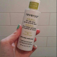 Reversa Acne Solution Treatment uploaded by Alyssa M.
