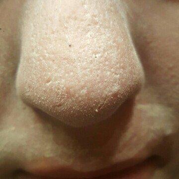 Mary Kay Botanical Effects Skin Care Set Formula 1 Dry Skin uploaded by Samantha T.