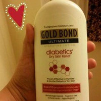 Gold Bond Ultimate Diabetics' Dry Skin Relief Hydrating Lotion, 18 oz uploaded by maribel l.