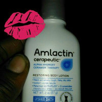 AmLactin Alpha-Hydroxy Therapy Cerapeutic Restoring Body Lotion for Arms Legs Best Dermatologist Moisturizer for Dry Skin uploaded by TRACEY H.