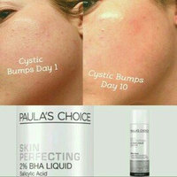 Paula's Choice Skin Perfecting 2% BHA Liquid uploaded by Sara B.