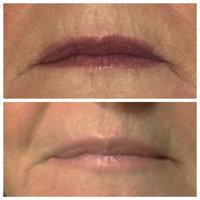Redefine Lip Renewing Serum uploaded by Emily M.