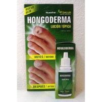 Hongoderma: Antifungal Foot and Nail Lotion