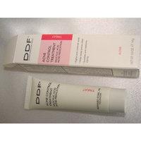 DDF Acne Control Treatment, 0.5 oz.