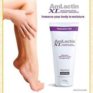 AmLactin XL Lotion, 5.6 Ounces