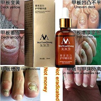 Original MeiYanQiong Fungal Nail Treatment Essence Nail and Foot Whitening Toe Nail Fungus,ProfessionRemoval Feet Care Nail Gel