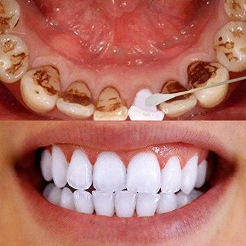 YOYORI Tooth Care, 80g Magic Natural Teeth Whitening Powder Pearl Tooth Powder Teeth Dental Hygiene