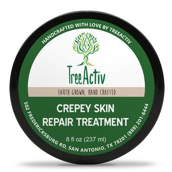 TreeActiv Crepey Skin Tightening Skin Lotion, Face Neck & Chest Firming Cream 8oz