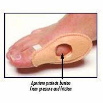 Bunion Shield Universal