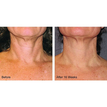 ly Launched Best Ever Neck Reserve Creme - Amazing Results Improvement Can Be Seen Within 3-5 Days! Gaurantee