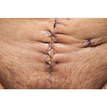 Canvas Print Scar Surgical Scar Op Operation Abdomen Surgery Stretched Canvas 10 x 14