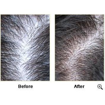 Origenere - Hair & Scalp Tonic for Thinning Hair / Hair Loss - 125 Ml