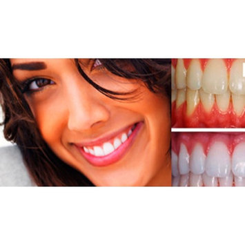 The Ultimate Teeth Whitening Kit (3 Gels of Highest 44% Expertwhite Teeth Whitening Gel, Whitening Tray, After Whitening Gel & Tooth Whitening Results Accelerator Light). 15 Minutes to Whiter Teeth.