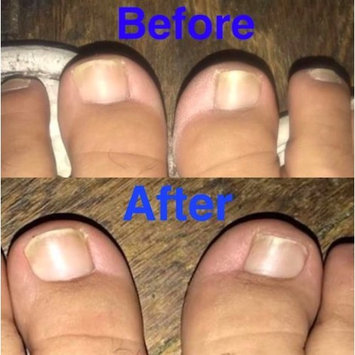 Probelle Clinically Proven Natural Fungal Nail Gel Treatment - Extra Strength Formulation Restores Beauty to Fungal Nails 15 ml