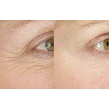 Eye Cream with Retinol, Matrixyl 3000 and Tripeptide-5 1oz Advanced Firming Cream by Spa-Chic