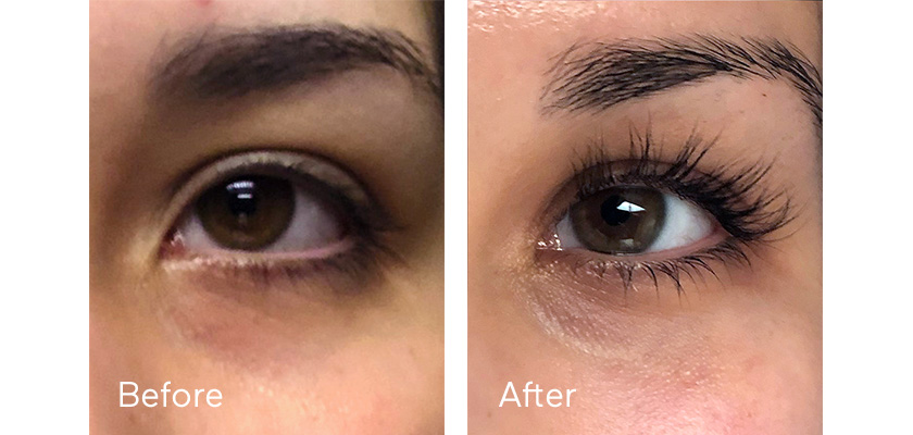 a4fa5996529 Say Hello to Longer Lashes With Latisse | Influenster Reviews 2019