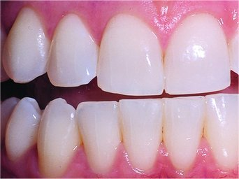 Crest 3d White Whitestrips Gentle Routine 56 Strips uploaded by Beth M.