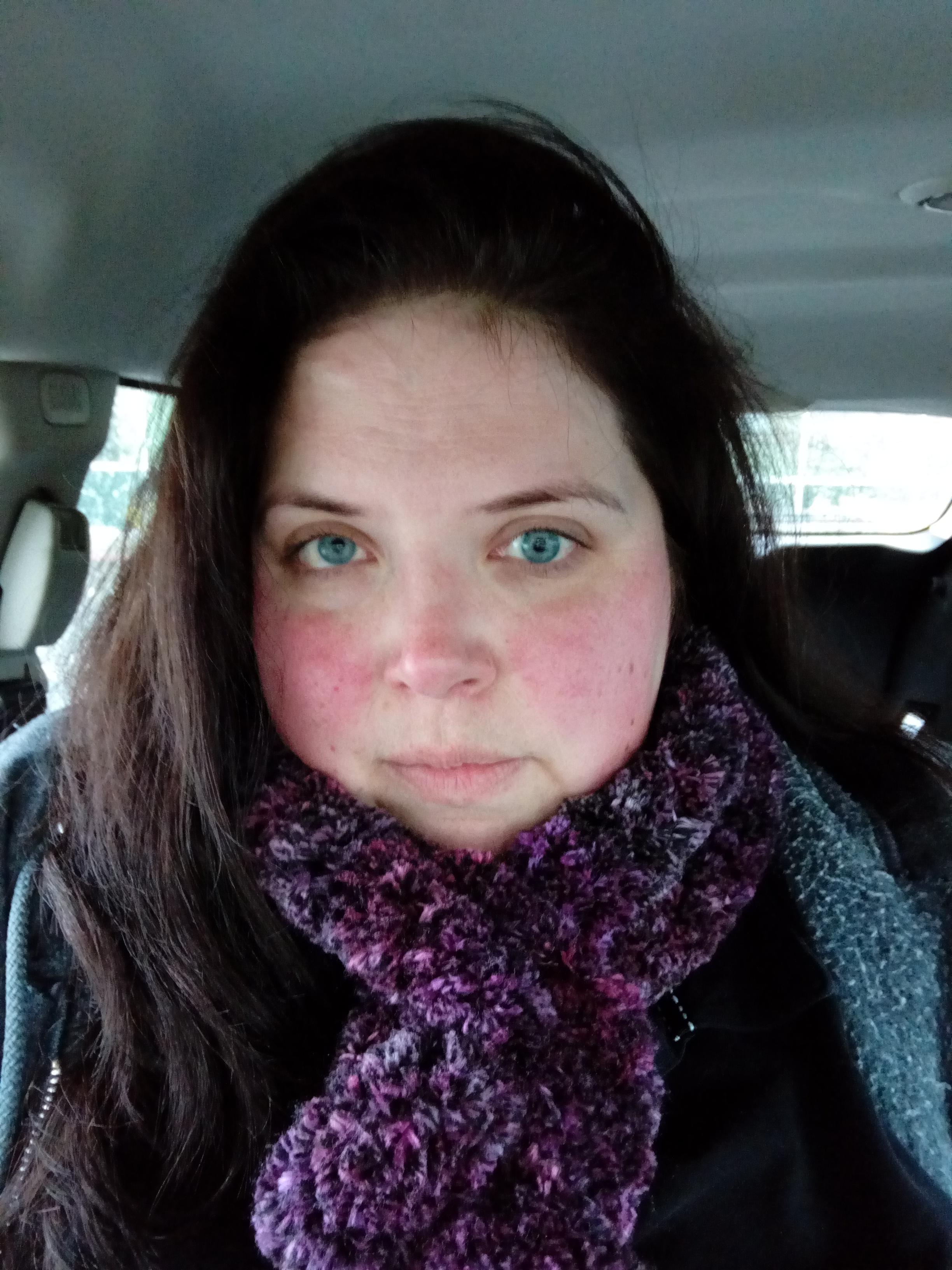 traitement acné antibiotique tetralysal wow