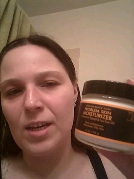 Video of SheaMoisture African Black Soap Problem Skin Moisturizer uploaded by Denise T.
