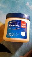 Vaseline® Jelly Baby uploaded by Teresa G.